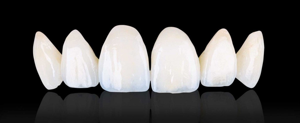 Dental Lab Ips Empress Esthetic Porcelain Veneers