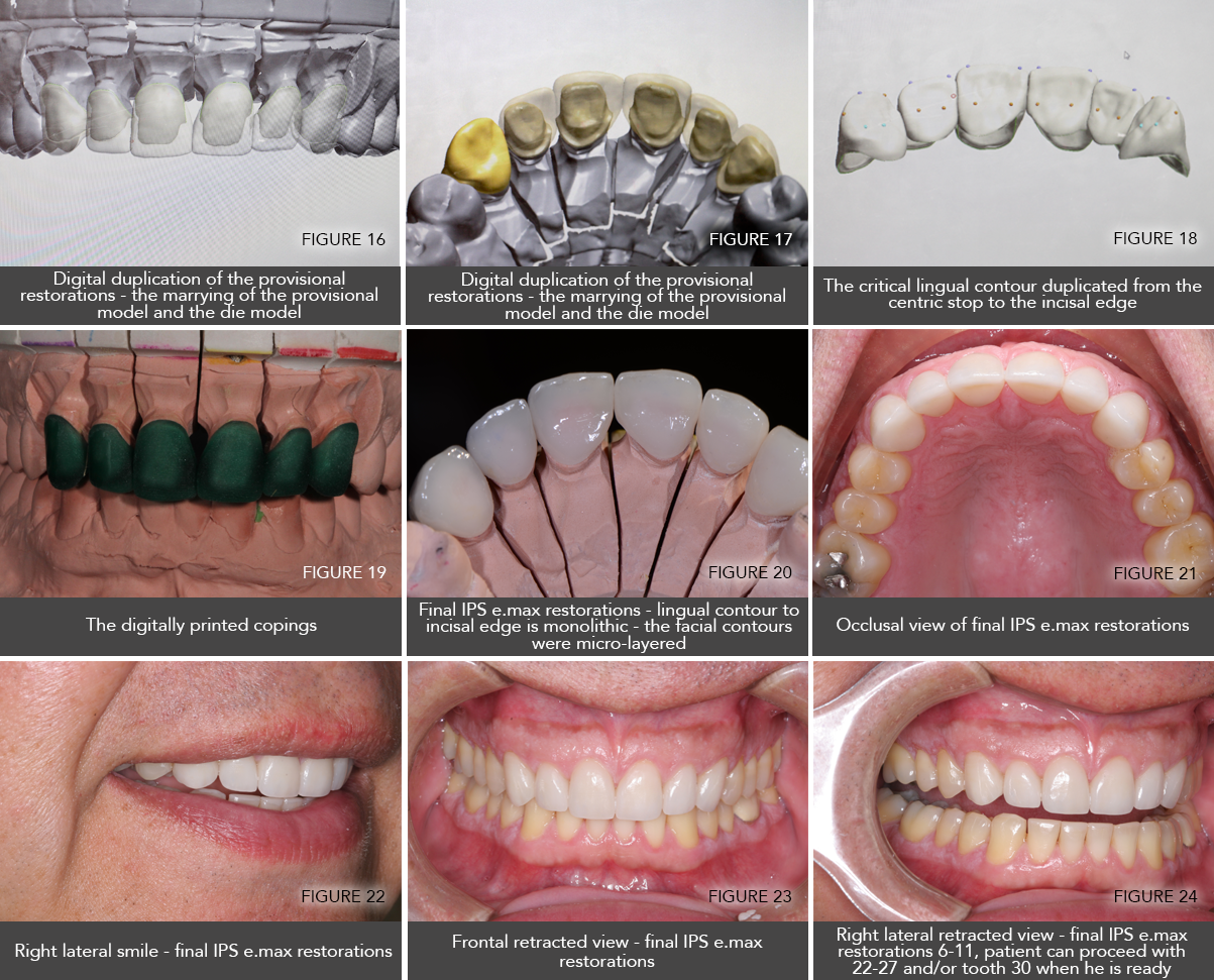 With all of the effort that has been taken to customize the patient's  anterior guidance, and ultimately create an optimum occlusal scheme, ...