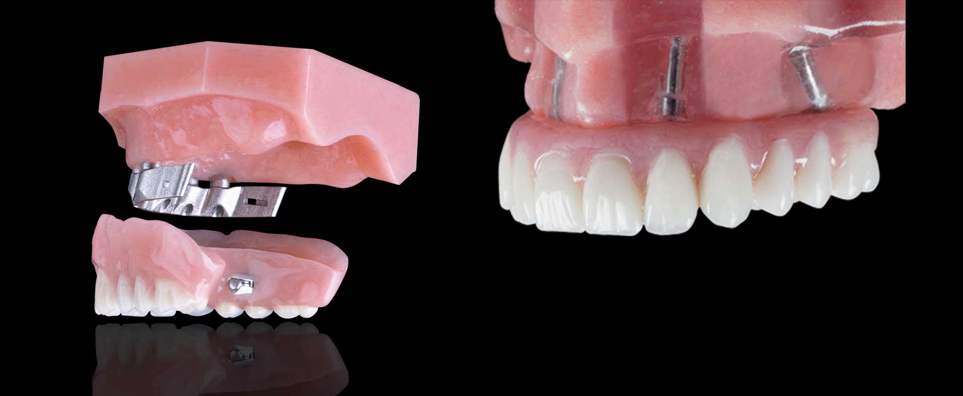 REMOVABLE-IMPLANT-PROS-HEADER-IMAGE